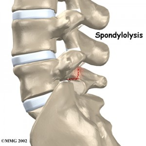 spondylolysis_back_pain
