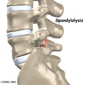 spondylolysis_back_pain