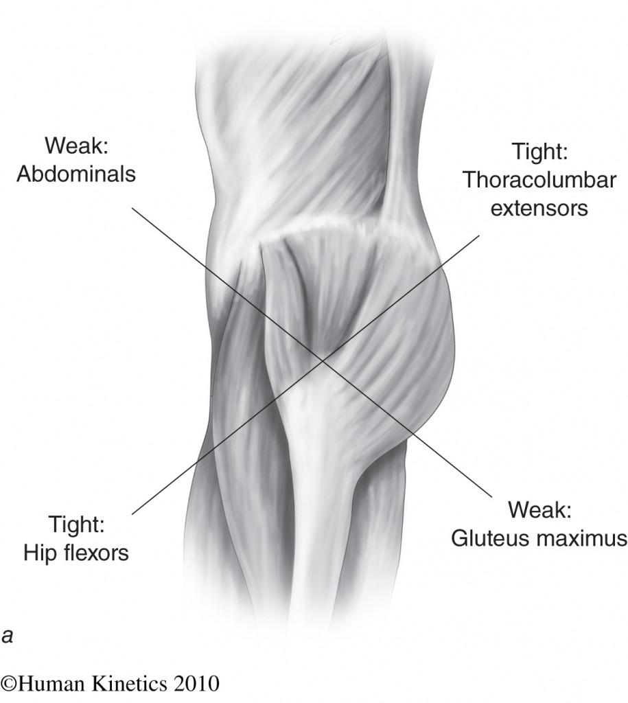 tight hip flexors chiropractor