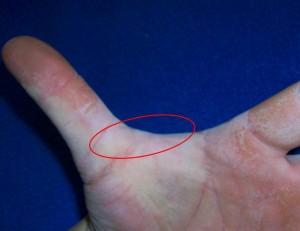 thumb webbing