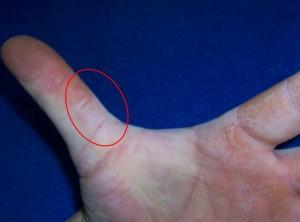 tough part of thumb